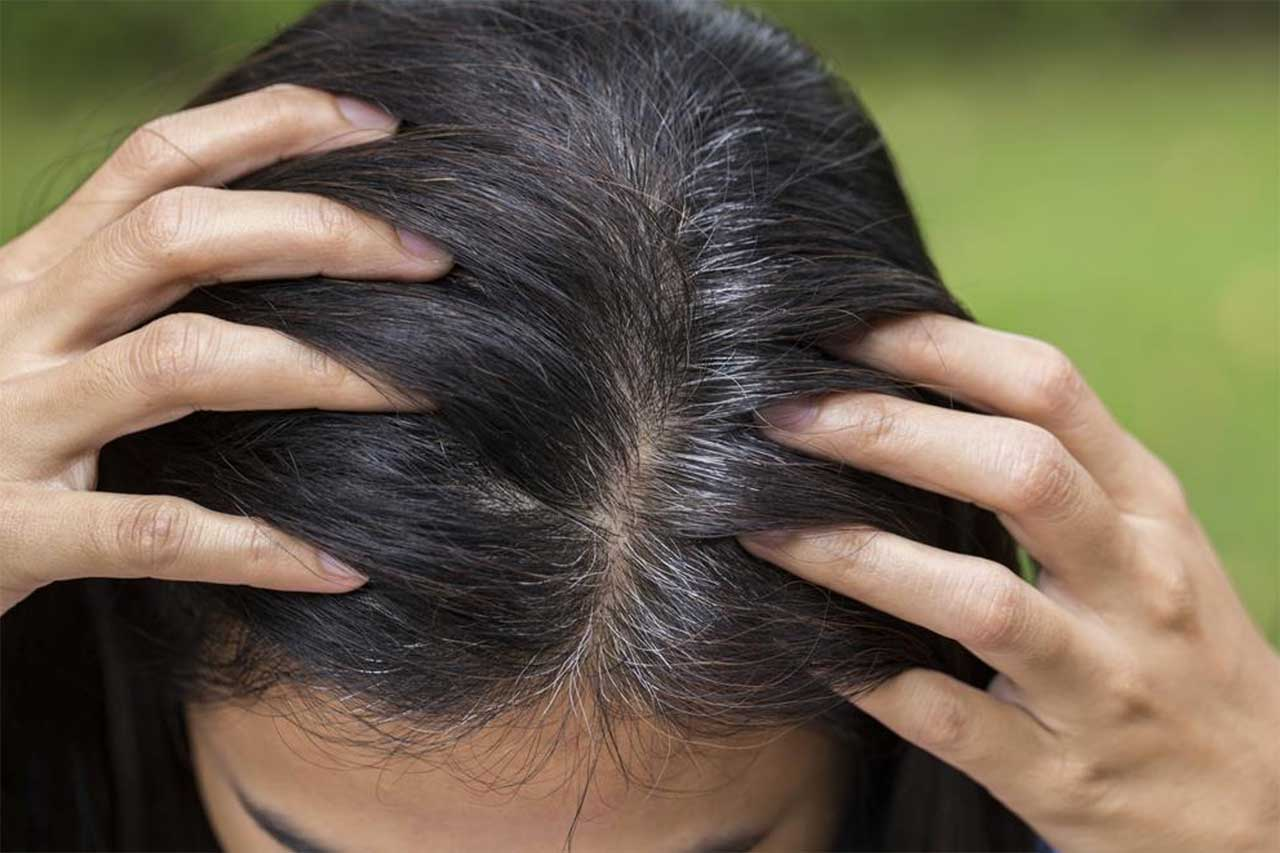 10 Effective Home Remedies To Treat Hair Thinning 10 Effective Home Remedies To Treat Hair Thinning new picture