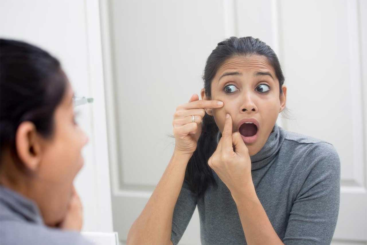 how to avoid pimples naturally