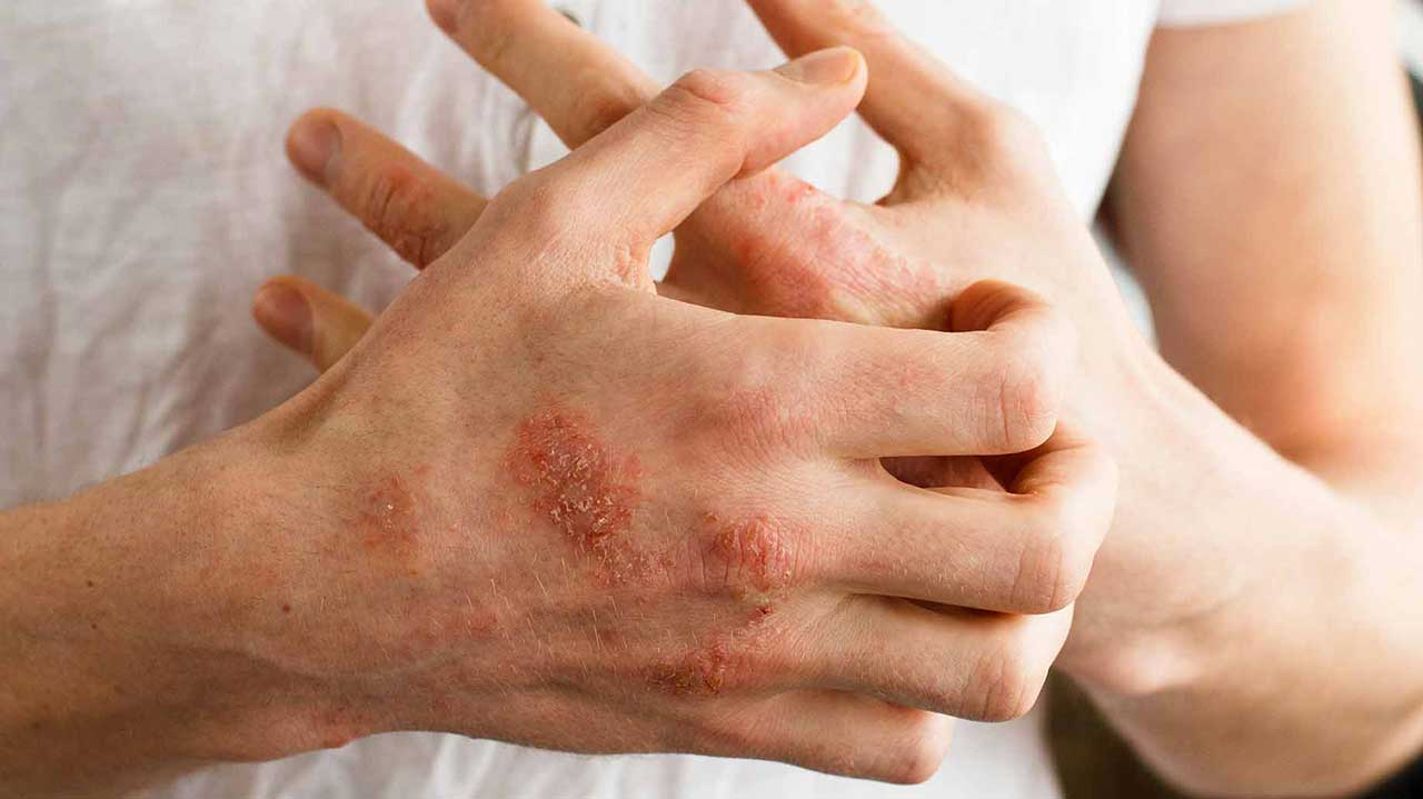 Home Remedies To Cure Eczema Naturally
